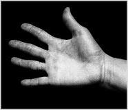 hand callus